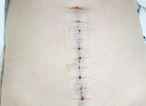 手術3日後の傷
