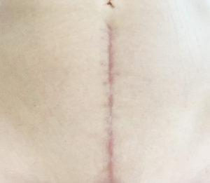 手術4カ月後の傷跡